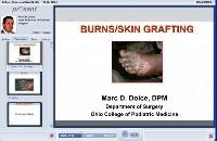 Burns and Skin Grafts