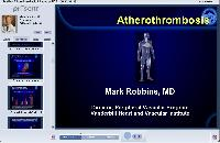 Atherothrombosis a Focus on PAD
